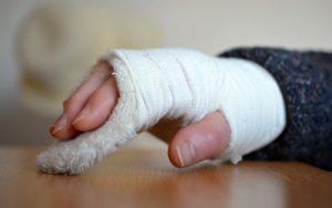 Gebrochenes Handgelenk im Gips